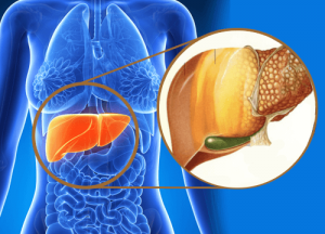 1-fatty-liver-disease