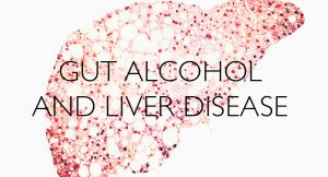 Gut-Alcohol-and-liver-disease