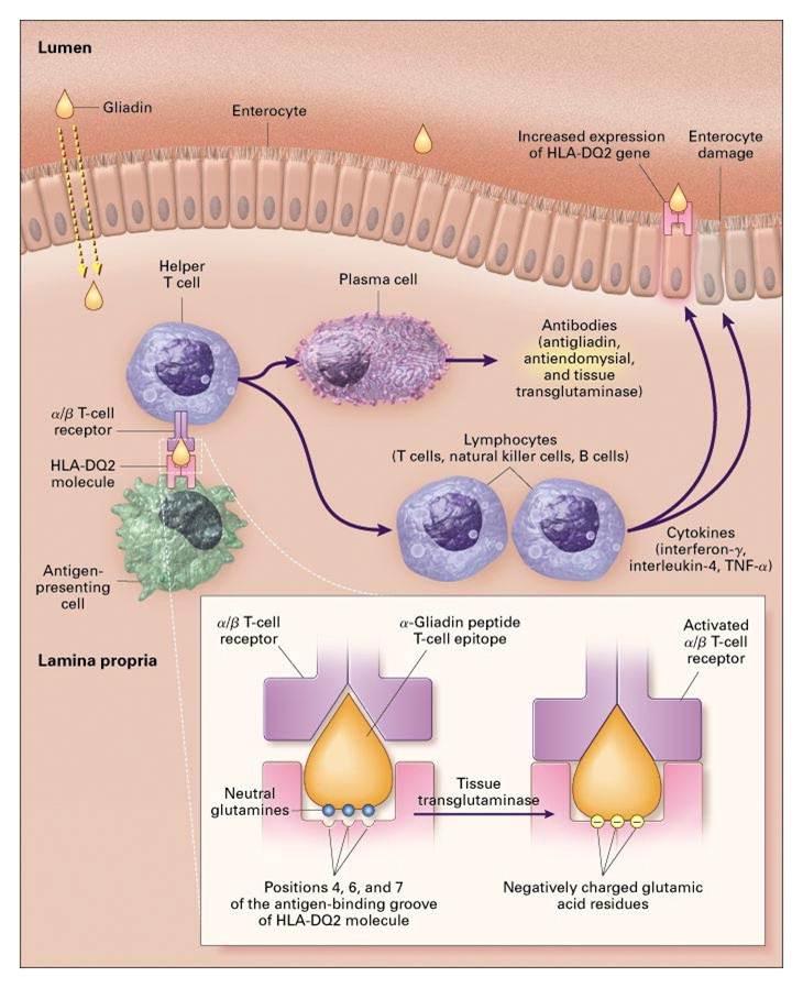 tumor in darm